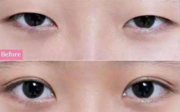视力加盟,治疗弱视加盟